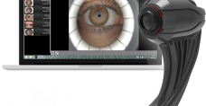Ocular Surface Analyser OSA