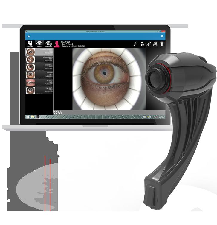 Osa Ocular Surface Analyser
