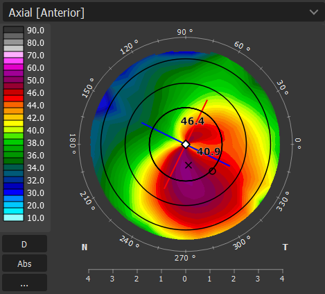 TOPOGRAPHY keratoconus